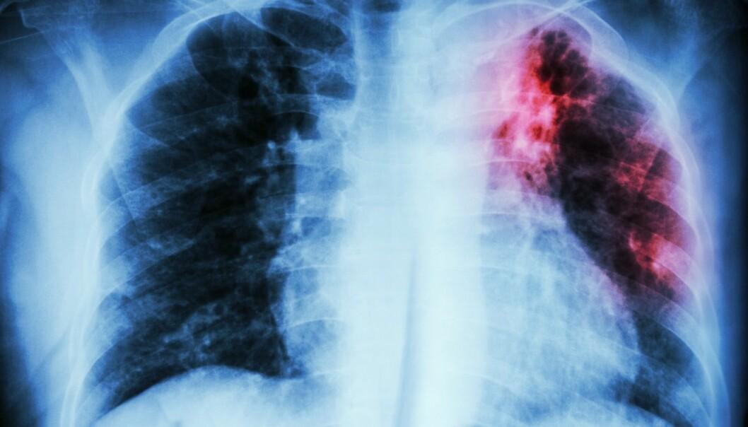 Røntgenbilde som viser lungetuberkulose i øvre venstre lunge.  (Foto: Puwadol Jaturawutthichai / Shutterstock / NTB scanpix)