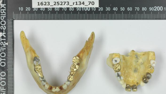 Isdalskvinnen hadde en rekke gullbroer i tannsettet sitt, som ikke er typisk for norsk tannbehandling. (Foto: Kripos)
