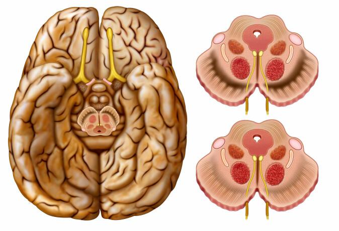 Illustrasjon av det senteret i midthjernen som utløser dopamin. Dopamin gjør oss oppstemte og kan forsterke trangen til hasj, spill, sukker, kaffe, alkohol og alt mulig annet, hvis hjernen før har opplevd at det føles bra. (Foto: ilusmedical / Shutterstock / NTB scanpix)