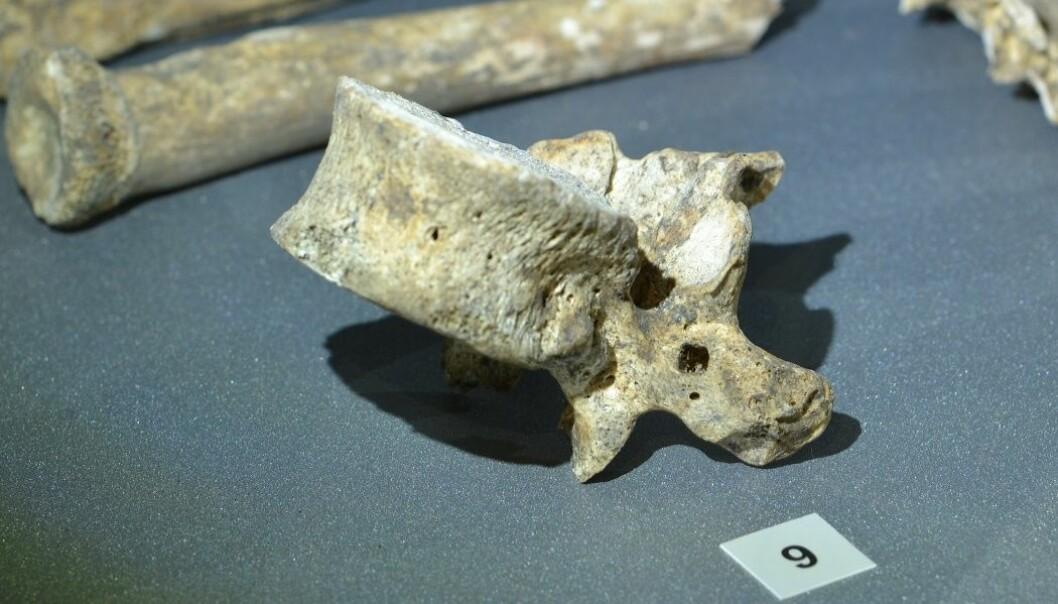 Dette er en bit av ryggsøylen til et menneske som levde for 900 år siden. Men hvorfor er det et firkantet hull i den? (Foto: Sean Dexter Denham)