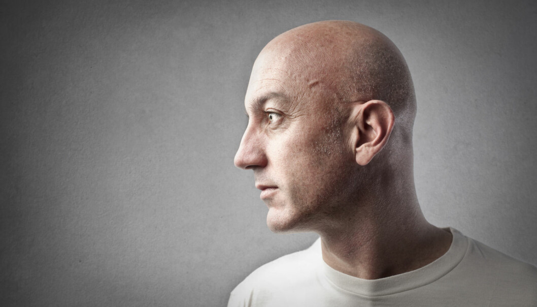 Personer som har fått cellegift, kan senere ha problemer med å huske eller konsentrere seg. Det dokumenterer en ny studie blant 64 menn med testikkelkreft.  (Illustrasjonsfoto: Ollyy / Shutterstock / NTB scanpix)