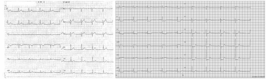 På venstre side kan du se en normalt EKG, og på høyre side kan du se hvordan det ser ut hos en pasient med hjertesykdommen. Like etter de høye piggene ser du merkene II, III, aVF, V4, V5 og V6. LIke etter det «dykker» kurven ned og forblir lav før den igjen stiger til et normalt nivå. (Foto: Bundgaard et. al.)