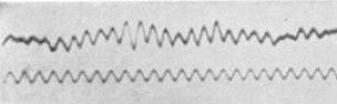 Hjernesignaler, en av de første gangene noen klarte å måle dem, i 1929. (Kilde: Hans Berger)
