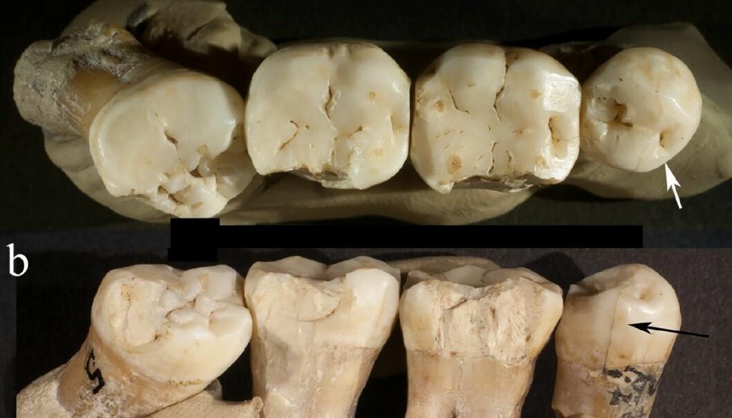Disse tennene satt i munnen på en neandertaler for 130 000 år siden. Bare tennene er igjen. (Bilde: Frayer et al./CC BY NC ND)