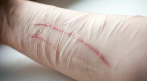 Helsevesenet sliter med å hjelpe pasienter med ekstrem selvskading