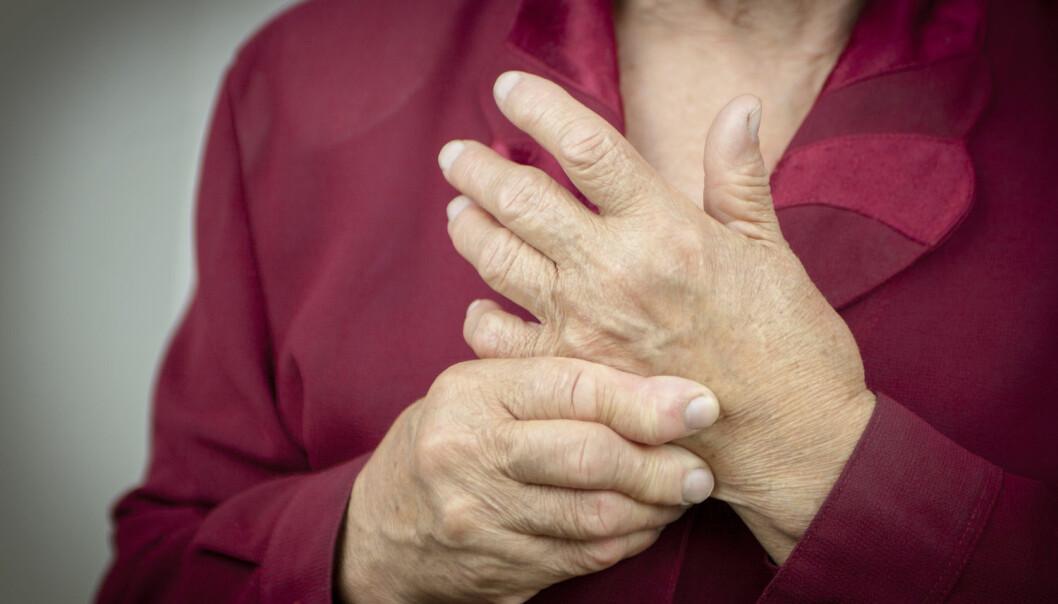 Leddgikt er en smertefull sykdom som ødelegger leddene i blant annet hendene. Medisiner som bremser skader på bein og brusk, kan gi pasientene et bedre liv. (Foto: Shutterstock/NTB scanpix)