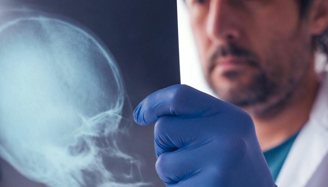 Dette er en av de første studiene der forskere har målt promillen hos en høy andel av de som blir innlagt med hodeskader.  (Foto: igorstevanovic / Shutterstock / NTB scanpix)