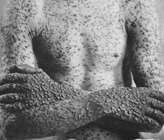 Kopper gir utslett som væsker og senere tørker inn, skapt av viruset variola. Her et tilfelle fra 1886.