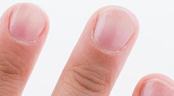 Ny app kan avsløre blodmangel med et bilde av neglene dine