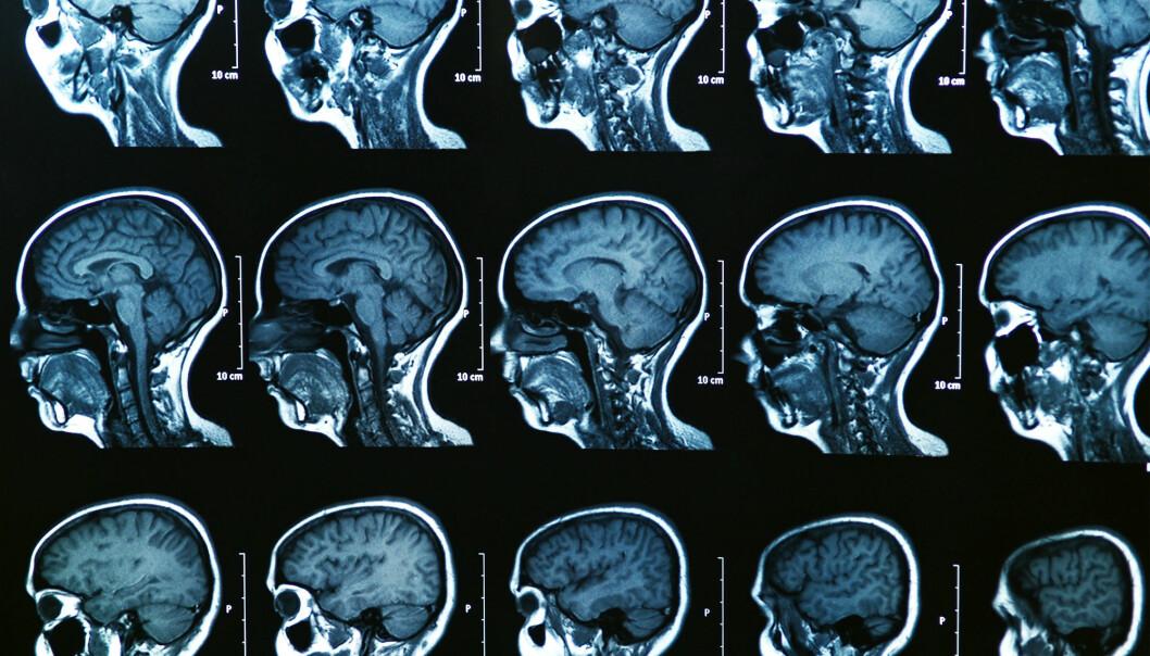 Nettverket i hjernen vår er helt unikt for hver enkelt av oss. Nå viser det seg at forskere kan bruke dette nettverket til å avsløre tidlige tegn på psykiske lidelser. (Illustrasjonsfoto: Colourbox)