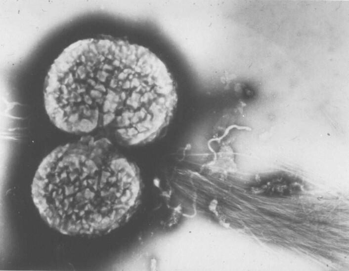 Elektronmikroskopisk bilde av to gonokk-celler med «hestehale» som gjør at de fester seg på slimhinnen og til hverandre. Foto: Tone Tønjum.