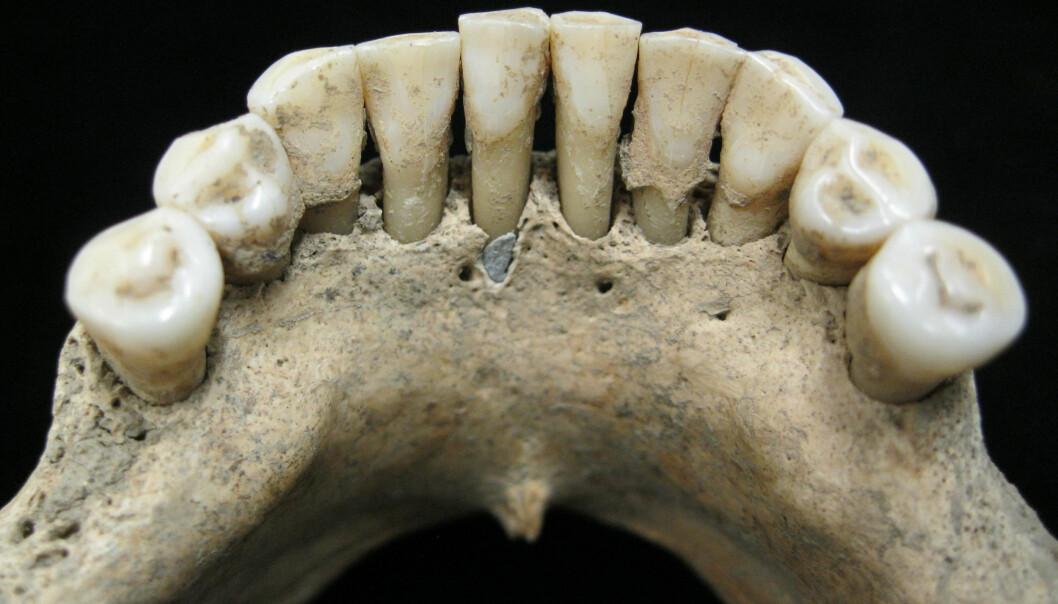 I disse tennene fant forskerne rester etter et svært ettertraktet fargestoff. (Bilde: Christina Warinner)