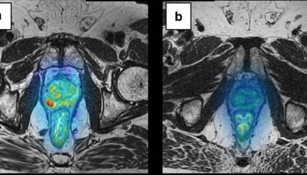 Bildet viser kreftsvulster i prostata før behandling (til venstre) og etter behandling av vaksine som stimulerte pasientens immunsystem. De røde områdene viser svulstene, og du ser tydelig at behandlingen hos denne pasienten har hatt god effekt.  (Foto: Wolfgang Lilleby/Cancer Immunology, Immunotherapy)
