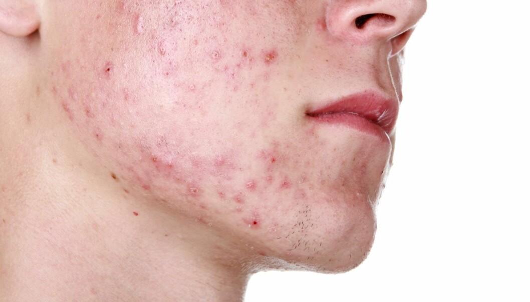 Mange sliter med kviser i ungdomsårene. Kan noe av problemet være en ubalanse i bakteriefloraen på huden? (Illustrasjonsfoto: Suzanne Tucker / Shutterstock / NTB scanpix)