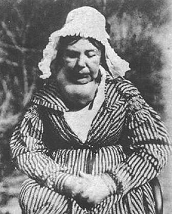 Det som regnes som det første fotografiet tatt til medisinsk bruk viser en skotsk kvinne med struma, 1847. (Foto: Hill & Adamson)