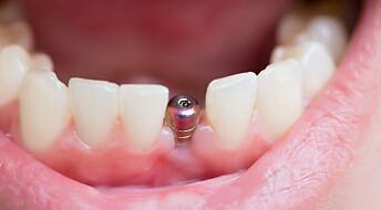 Antioksidanter kan gjøre tannimplantater problemfritt