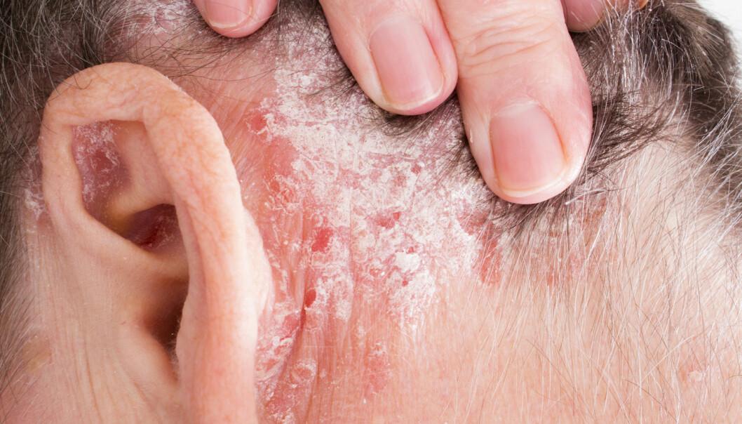 Ikke alle som har psoriasis rammes like hardt. Ny forskning bekrefter mistanken om at det er kjønnsforskjeller.  (Foto: Lipowski Milan / Shutterstock / NTB scanpix)