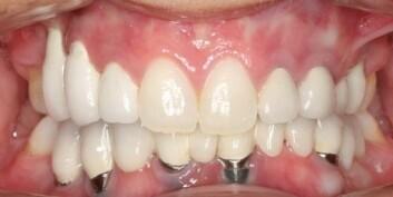 Selv om denne pasienten var fornøyd med resultatet, ser du tydelig at metallet som implantatet er festet i, vises i tannkjøttet. (Foto: OD/UIO)