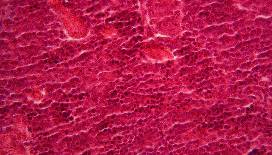 Vanlige celler er ikke forhåndsbestemte, men kan faktisk endre sin opprinnelige oppgave. Det viser forskning på celler i bukspyttkjertelen. (Foto: Colourbox)