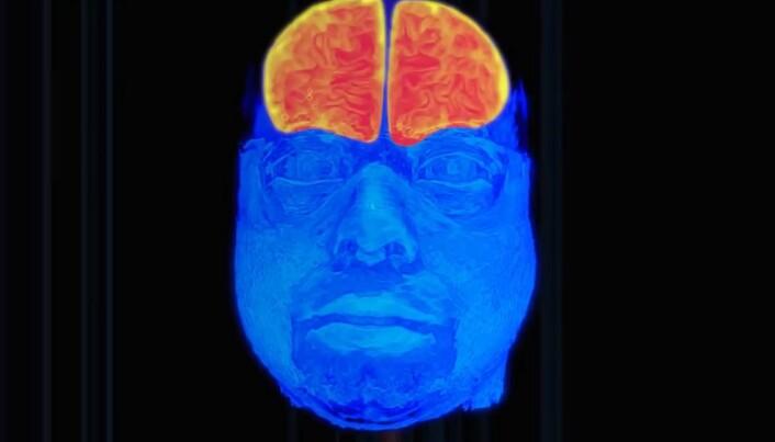 Slik tar vi bilde av det som skjer i hjernen