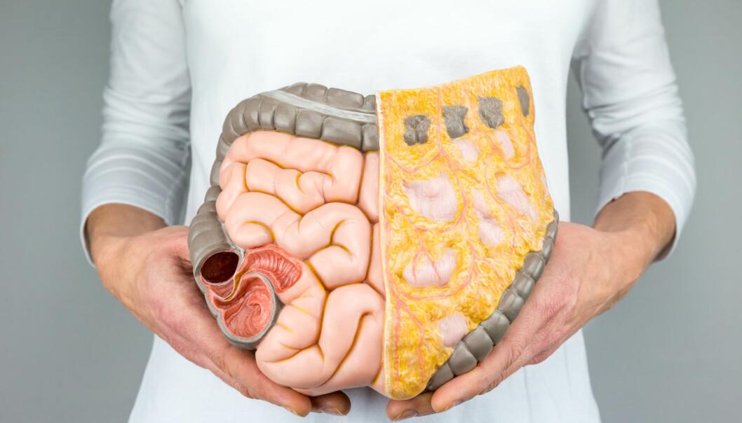 De ørsmå organismene som bor inni tarmen vår kan påvirke hele kroppen. (Foto: Ben Schonewille / Shutterstock / NTB scanpix)