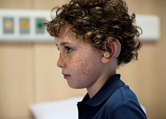 Barn med nedsatt hørsel sliter med melodien i språket