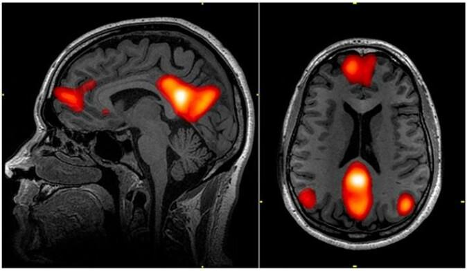 De røde områdene er steder som normalt er synkronisert med hverandre i et nettverk som kalles «default mode network», men psilocybin får dem til å miste takten. Ifølge Martin Korshøy Madsen kan det være årsaken til at opplevelsen av «selvet» reduseres når man inntar psilocybin. (Foto: John Graner et al. 2013)