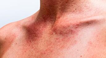 Nye allergier skyller inn over Europa