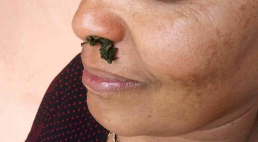 Uforsvarlig bruk av urtemedisiner kan være farlig for gravide i Etiopia