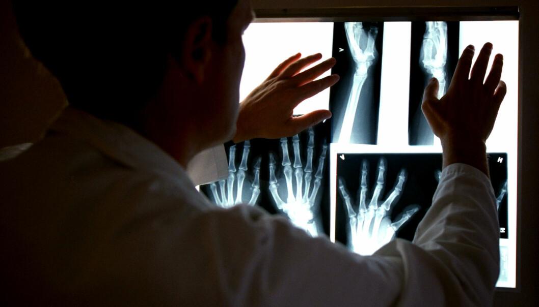 En norsk forsker har utviklet en ny type medisin mot leddgikt. Den blokkerer et overordnet kjønnshormon som kan spille en rolle i utviklingen av sykdommen. Bildet viser røntgenbilder av en pasient, ved revmatologisk poliklinikk, Diakonhjemmet.  (Foto: Aftenposten)