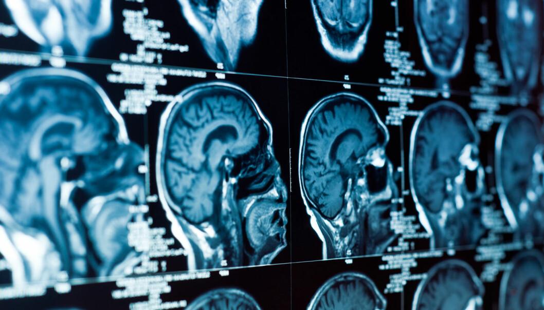 Det finnes mange indikasjoner på at genetikk kan være med i bildet – men bevisene er uklare. Noen ser på hjernestørrelsen. Mye tyder på at størrelsen korrelerer med intelligensen. Det finnes også bevis på at svarte i gjennomsnitt har mindre hjerne enn hvite. Korrelasjonen viser imidlertid ingen kausal sammenheng, skriver Tunstad. (Foto: SvedOliver, Shutterstock, NTB scanpix)
