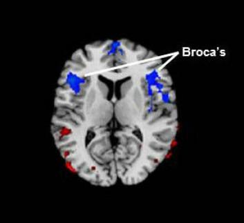 Broca's område ligger i hjernens frontallapp. Den blå fargen representerer redusert blodgjennomstrømming hos barn og voksne med stamming sammenlignet med folk som ikke stammet. (Foto: (Figur: Children's Hospital Los Angeles))