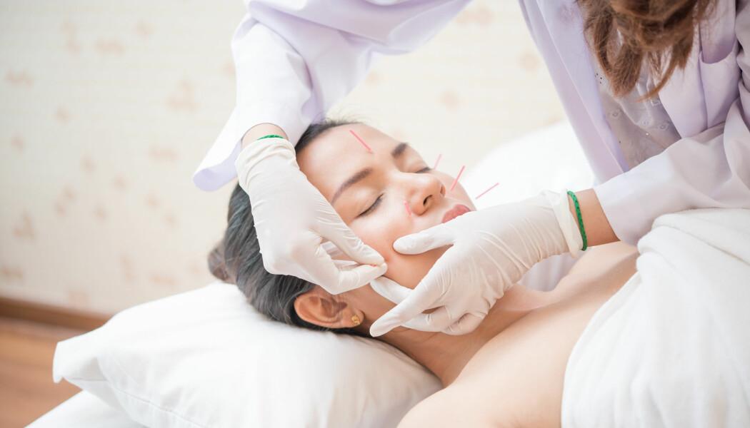 Placeboakupunktur eller «sham acupunkture», som det kalles på engelsk, ble ikke brukt en ny dansk studie. Men det er altså mulig, mener to danske placeboforskere. (Foto: narikan / Shutterstock / NTB scanpix)