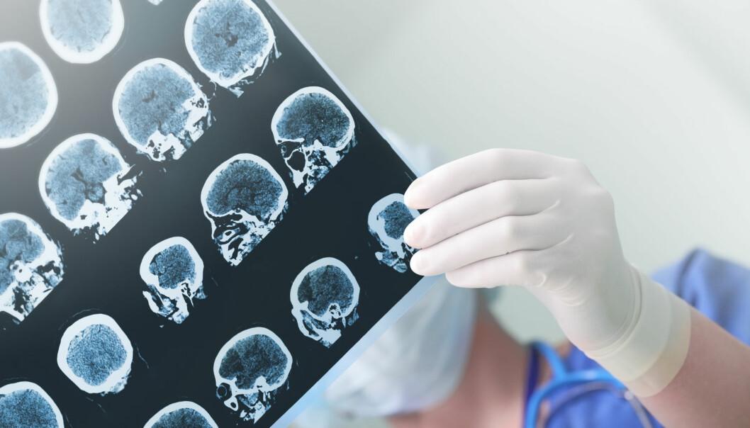 Danske forskere avslører hvordan hjernen kan forsvare seg mot virusangrep. (Illustrasjonsfoto: sfam_photo / Shutterstock / NTB scanpix)