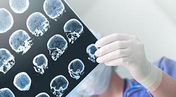 Slik bekjemper hjernen virus