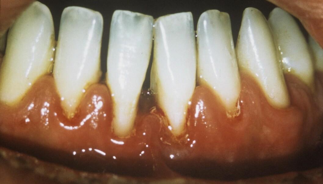 Periodontitt ødelegger vevet rundt tennene, både på siden av tanna og under den. Her har tannkjøttet blitt ødelagt og trekker seg tilbake, slik at det danner seg mellomrom mellom tennene.  (Foto: Science Photo Library)