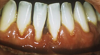 Melkesyrebakterie kan bekjempe vanlig tannsykdom