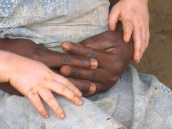 - Det eksisterer for lite lokal kunnskap om albinisme i Malawi. Folk flest vet ikke at det er en arvelig tilstand, skriver forfatterne av denne kronikken. (Foto: Stine Hellum Braathen)