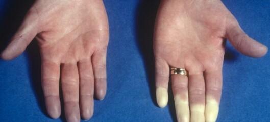 Hvorfor får noen hvite fingre når det er kaldt?