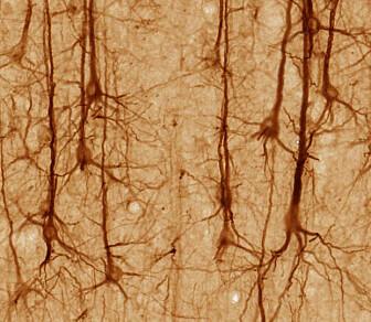 Illustrasjonsbilde: Dette er hjerneceller, kalt nevroner i cerebral cortex. (Bilde: UC Regents Davis/CC BY 3.0)