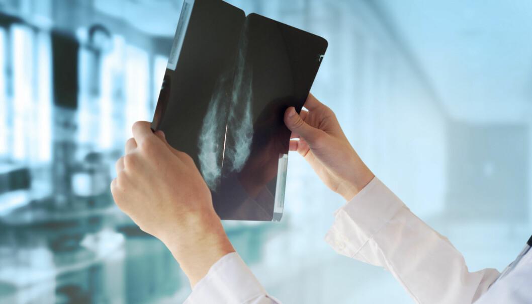Kvinner oppfordres til å undersøke sine egne bryster for å avdekke eventuelle kreftsvulster. Men ikke alle brystkreftrammede finner kuler i brystet, viser ny britisk undersøkelse. (Foto: Guschenkova, Shutterstock, NTB scanpix)