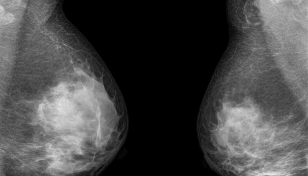Aggressiv brystkreft er vanskelig å behandle. Nå kan man ha funnet en ny medisin som fungerer.  (Foto: thailoei92/Shutterstock/NTB scanpix)