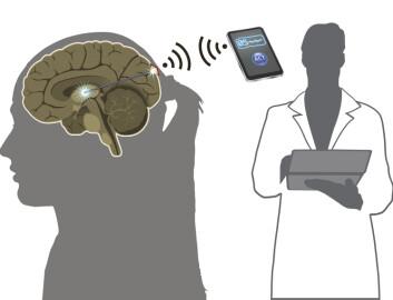Den nye medisinfabrikken i hjernen skal kunne kontrolleres trådløst. (Foto: (Illustrasjon: Nanna Bild, DTU Nanotech/København -Danmark))