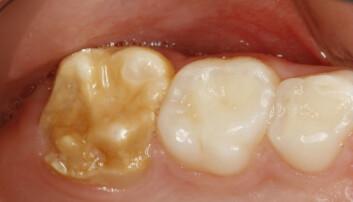 Hos noen barn blir ikke tannemaljen utviklet som den skal. Hvis dette skjer med bare enkelte tenner, og ikke alle, kalles tilstanden for Molar Incisor hypomineralization, som blir forkortet tilMIH. Her er tennene til en syvåring med MIH på 6-års jekselen.  (Foto: Universitetet i Oslo)