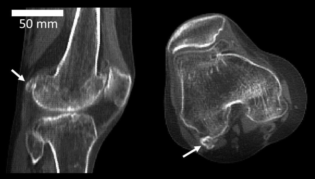 Fabella er en liten knokkel som ligger i senen bak i knehasen, men bare hos rundt 40 prosent av oss, ifølge en ny britisk studie. (Foto: Michael Berthaume/Imperial College London)