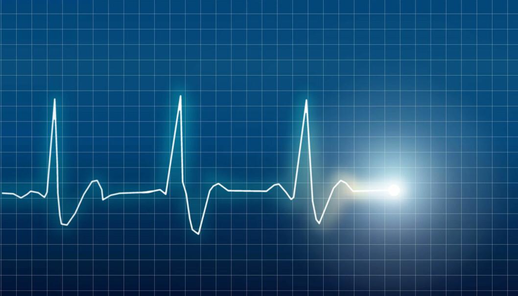 Illustrasjon av elektrokardiogram (EKG) av et hjerte (Foto: Eskemar / Shutterstock / NTB scanpix)