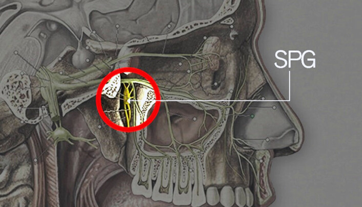 Illustrasjonen viser hvor det kirurgiske presisjonsinstrumentet Multiguide injiserer botox. Området ligger dypt inn i ansiktet, bak bihulene og nær hjernen. (Illustrasjon: NTNU)
