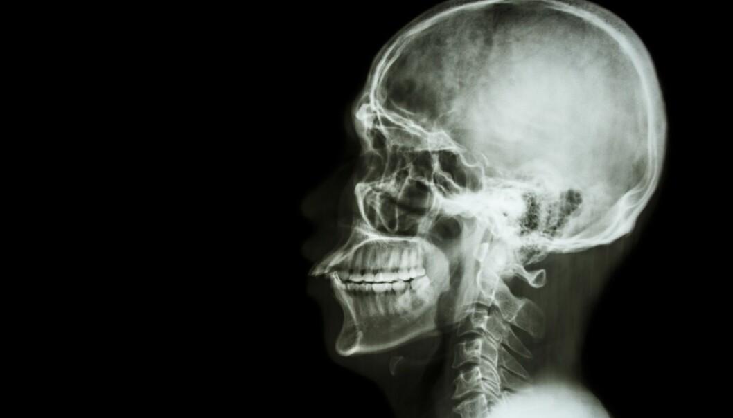 Studien viser at personer som har fått hjernerystelse, generelt har halvannen gang så stor risiko for ikke å være i ordinært arbeid fem år senere sammenlignet med kontrollgruppen. (Illustrasjon: Puwadol Jaturawutthichai, Shutterstock, NTB scanpix)