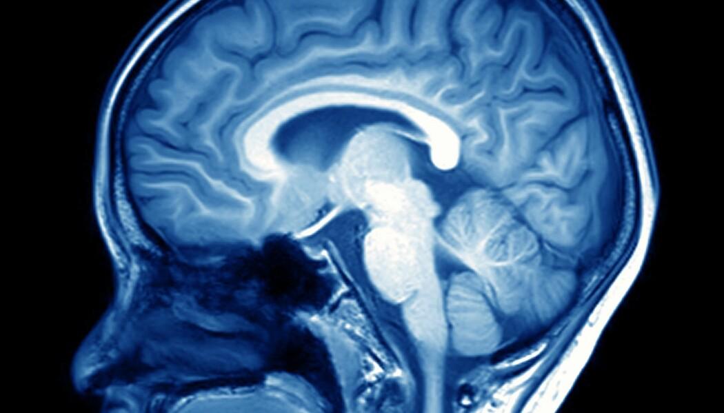 Signalstoffet i hjernen som varsler om betennelser og sykdom, kan også påvirke vekten vår. (Illustrasjon: MriMan, Shutterstock, NTB scanpix)