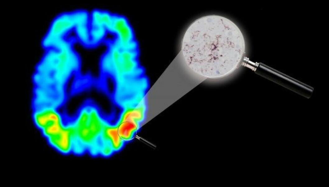 Svenske forskere har undersøkt hjernen til en død person som før han døde hadde fått gjennomført en tau-PET-skanning. Slik så de at bildet fra skanningen stemte med virkeligheten i mannens hjerne. Rødfargen på bildet du ser over avslører klart hvor det er mest tau-protein i hjernen. Ved siden av ser du et mikroskopbilde av det aktuelle området, hvor de mørkerøde trådene er tau-protein.  (Illustrasjon: Michael Schöll, Lunds universitet)